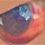 突如言われた化け物の目 治療はしない結膜下出血 964