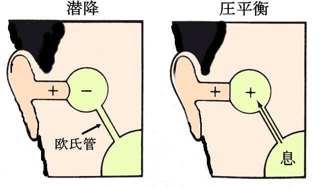 耳のスクイズと圧平衡
